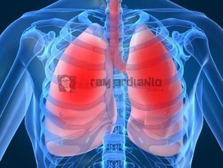 Bronkitis, Mencegah Bronkitis, Pencegahan Bronkitis