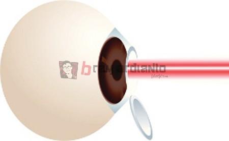 LASIK, Operasi LASIK, Operasi Mata LASIK