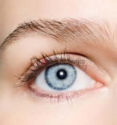 Rabun Jauh, Senam Mata, Terapi Mata, Latihan Mata Minus