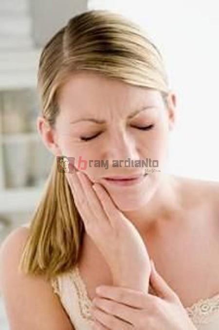 gigi, sakit gigi, gigi berlubang, obat sakit gigi, karies gigi, pengobatan alami sakit gigi, akibat gigi berlubang, kesehatan gigi