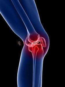 Pengobatan Osteoporosis, Perawatan Osteoporosis