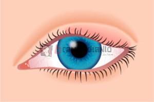 obat mata bengkak, kelopak mata bengkak, sakit mata bengkak, mengobati mata bengkak,penyebab mata bengkak, menghilangkan mata bengkak