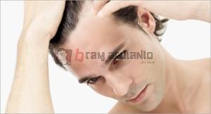 rambut rontok, kebotakan, vitamin rambut rontok