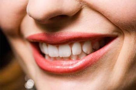 noda gigi, gigi bernoda, penyebab noda gigi, mengatasi gigi bernoda