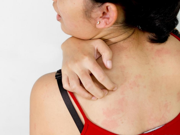 amoksisilin, alergi amoksisilin