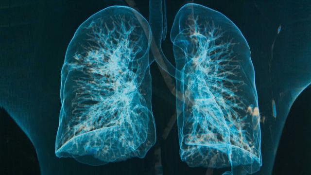 bronkitis dan pneumonia, perbedaan bronkitis dan bronkopneumonia, pengertian bronkitis, pengobatan bronkitis