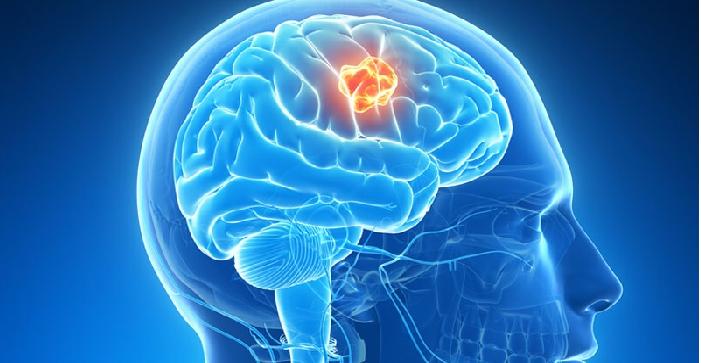 tumor otak, tanda-tanda awal tumor otak, gejala tumor otak, tumor otak adalah, kanker otak